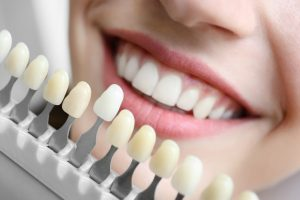 Dental Implants in Buderim