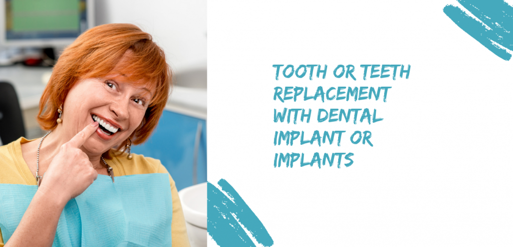 implant insert -buderim dentist