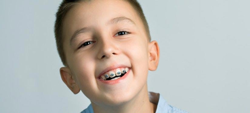 Buderim Dental Guide – Why It Is Important For Your Child To Get Braces