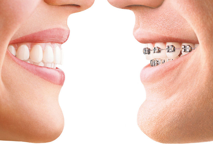 Dentist Buderim Guide : Top 3 Most Popular Braces Options For Adults
