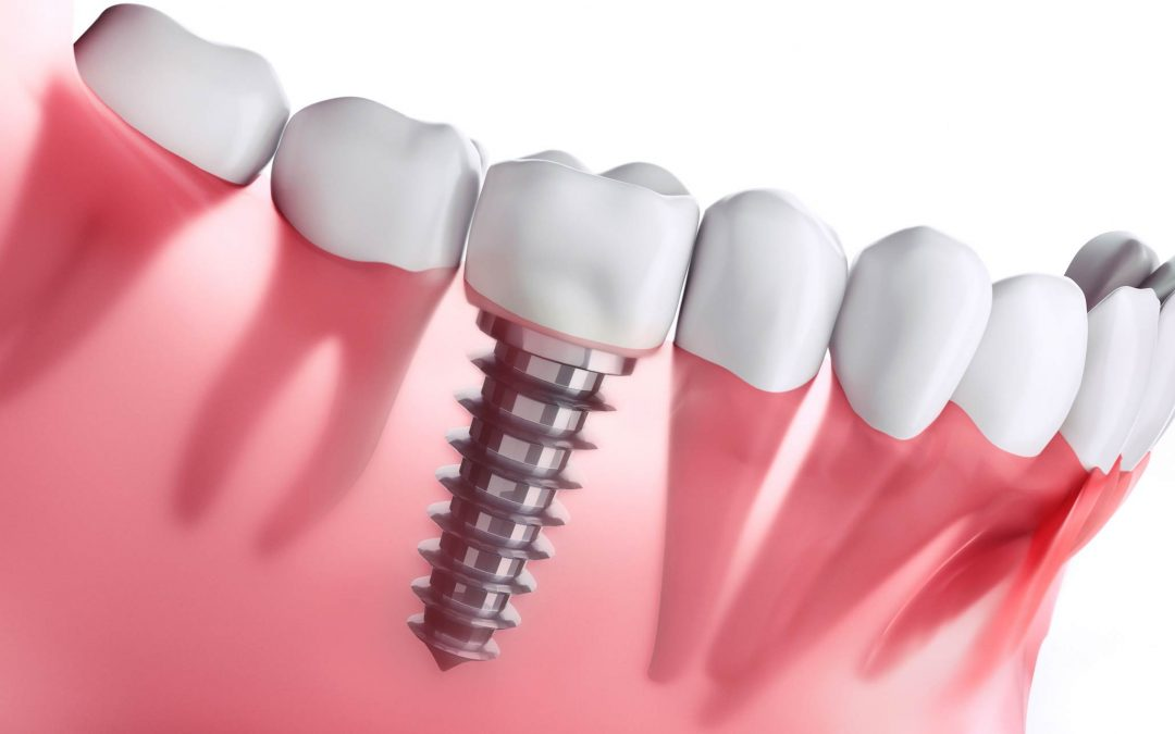 dental implants cost in sunshine coast